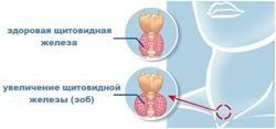 nodulární struma