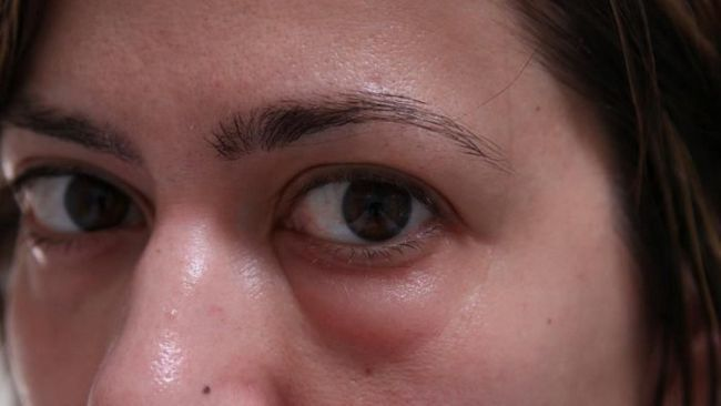 Príčiny a liečba opuchnuté oči