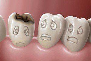 zubni bolest