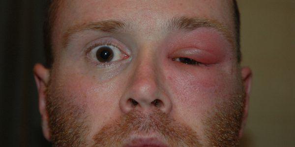 Príčiny opuchy očí a horné viečko