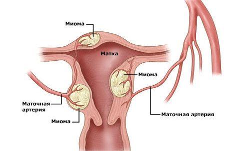 Umístí vzdělávání děložních myomů