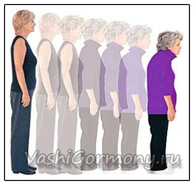 Příčiny, příznaky a rizikové faktory pro osteoporózu