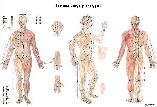 Použitie akupunktúry