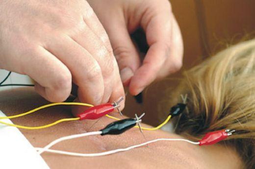 Spajanje električne struje na akupunkturne igle