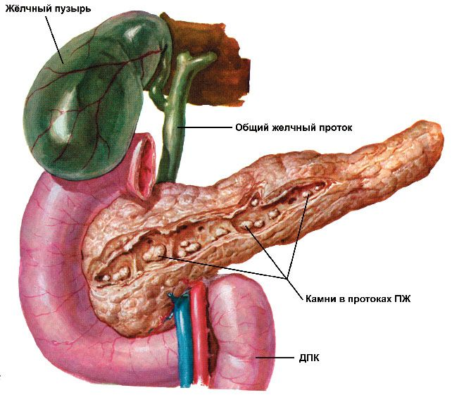 Pietrele din conductele pancreatice