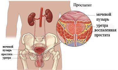 Symptomy prostatitidy