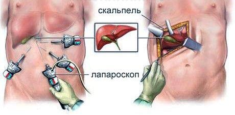 Metoda laparoscopică