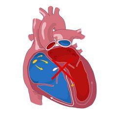 Vedenie v srdci, spomaľovať to, porušovanie: príčiny, lokalizácia než nebezpečný