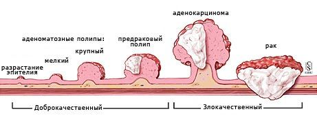Symptomatologie rakoviny tlustého střeva u mužů
