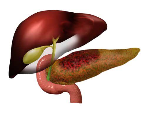 pancreatice induse de alcool