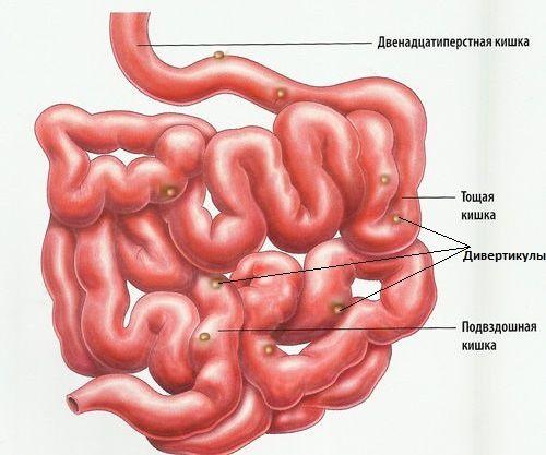 Bolest tankog crijeva