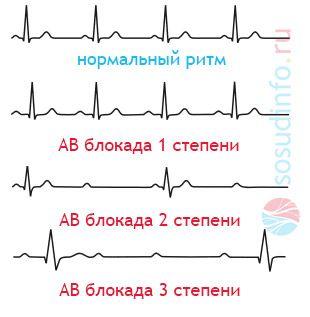 Antrioventrikulyarnaya srce blokade