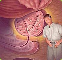 Příznaky a symptomy benigní hyperplazie prostaty