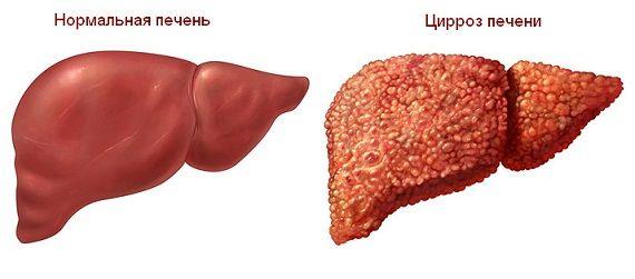 hepatic normal și ciroză hepatică