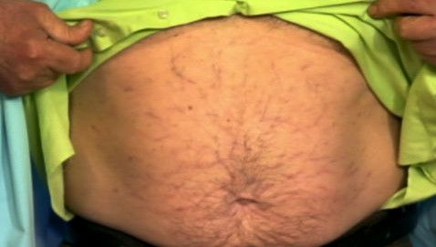 Șeful Medusa simptom al hipertensiunii portale