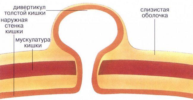 crijeva zid