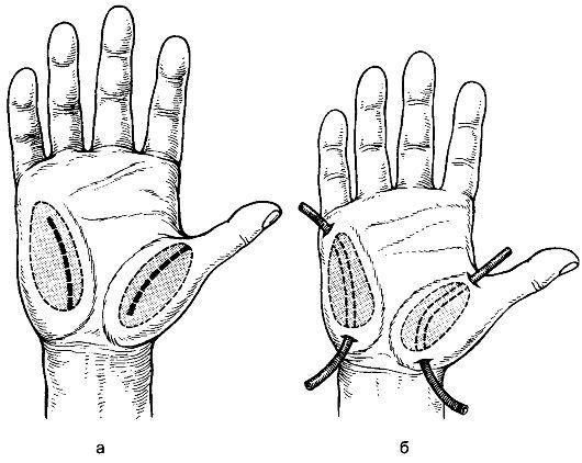 Delovanje absces čopič