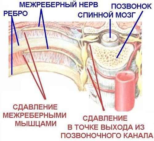Simptomi i tretman za interkostalnog neuralgije