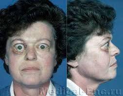 výstupek oka