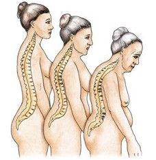 Symptomy a příznaky osteoporózy