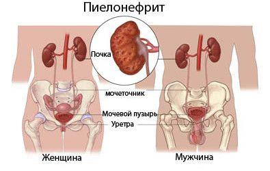 Što je pijelonefritis