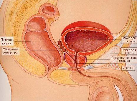 Příznaky akutní a chronické prostatitidy