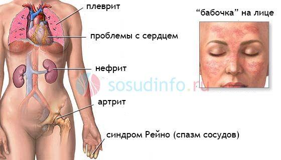 Manifestari și complicații ale lupus sistemic.