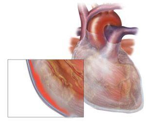 Pericardita - una din formele de impact al lupusului asupra inimii