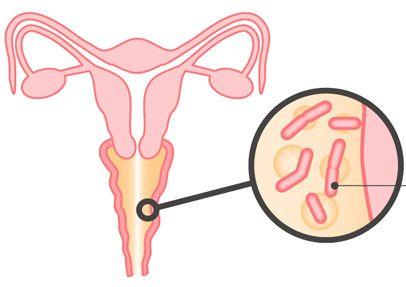 Metode liječenja infekcije kvasac u žena