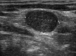 štítné žlázy ultrazvuk