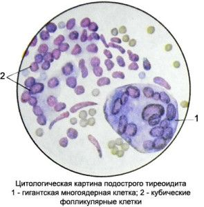 celulele tiroidita