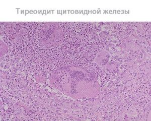 tiroidita tiroidă