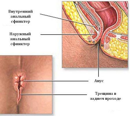 Prasak u anus
