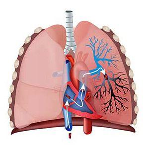 Plicní embolie (PE): příčiny, příznaky, léčba