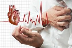 nepravidelný srdeční tep