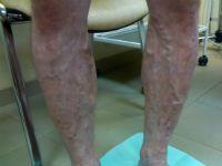 proširene vene u nogama