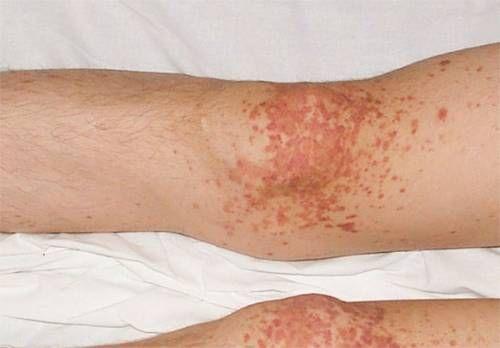O erupție pe picioare cu vasculita
