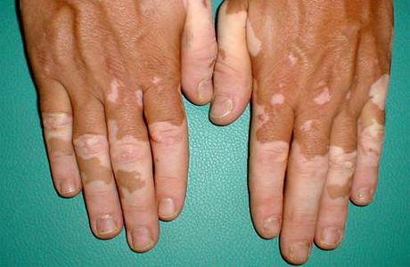 Vitiligo, iz različitih razloga i nove metode