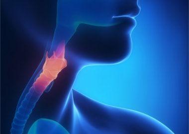 Polipii în gât și corzilor vocale