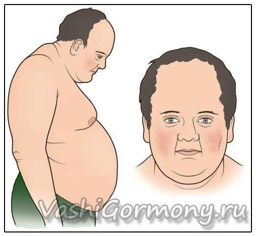 Obrázek: nadbytek hormonu kortizolu může způsobit váhu