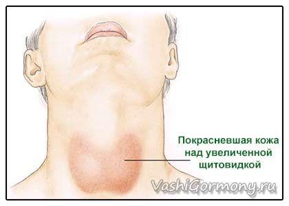 Tot ceea ce ai vrut să știi despre inflamarea glandei tiroide