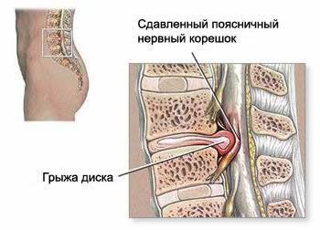 Tvorba herniated disk