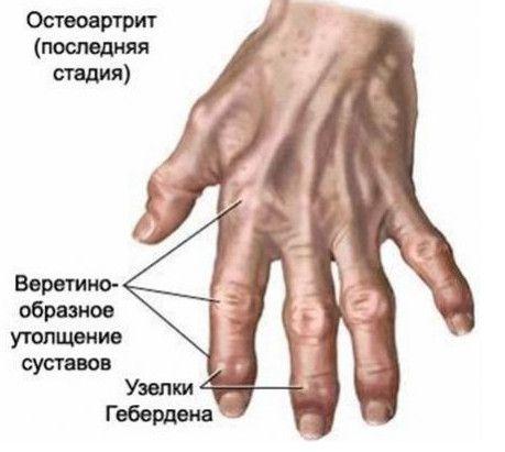 Nemoci ruce