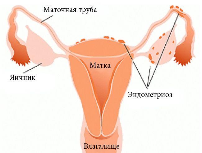 Što je endometrioza